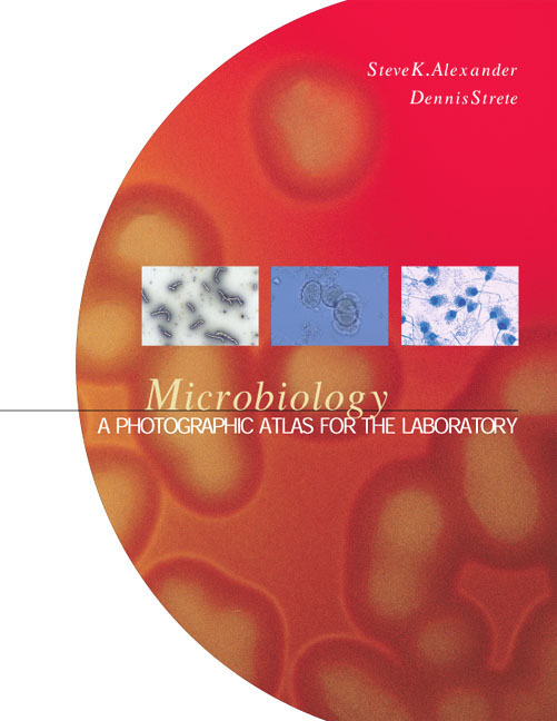 Microbiology: A Photographic Atlas for the Laboratory Steven K. Alexander Ph.D. and Dennis Strete